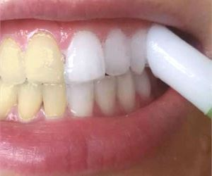 This $5 Trick Turns Yellow Teeth White In Minutes! Try It