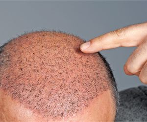 Dad Discovers Unique Method to Regrow Hair (Do This Daily)