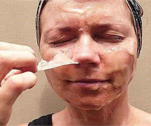 Do You Have Wrinkles? Remove Them Fast!